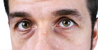 причины темных кругов под глазами у мужчин