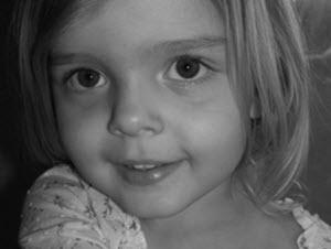 анатомические причины возникновения темных кругов под глазами у детей