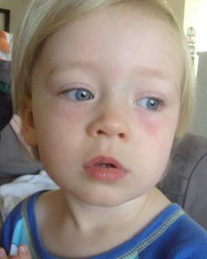 Аллергия может стать причиной появления красных кругов под глазами ребеночка