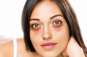главные причины появление темных кругов под глазами у женщин