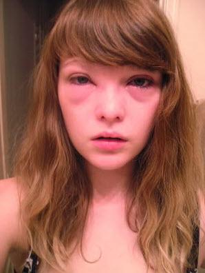 плач и перенапряжение глаз может вызвать появление отёков под глазами