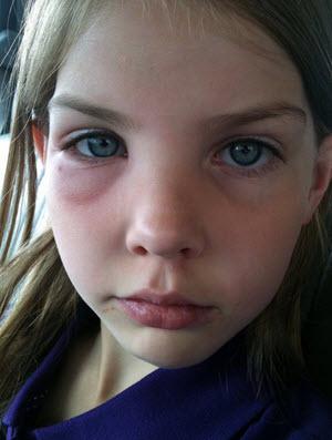 болезни и нарушение работы внутренних органов зачастую приводят к появление отёков под глазами