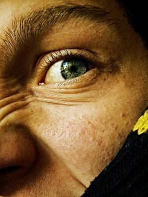 фото угрей на лице