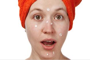 причины появление угрей на лице