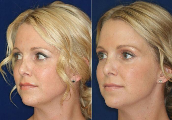коррекция носа филлерами фото