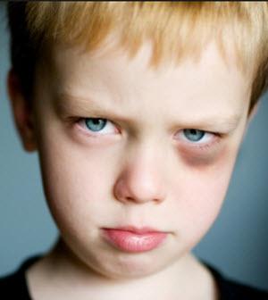 почему у детей появляются синяки под глазом