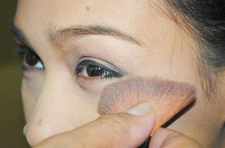 причины синяков под глазами и их лечение