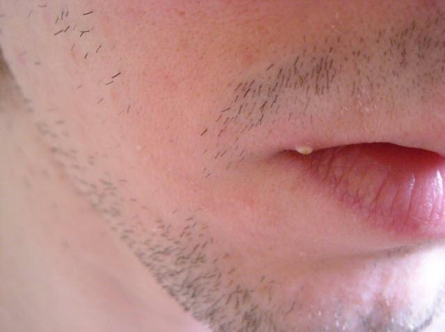 большой белый подкожный прыщ на губе