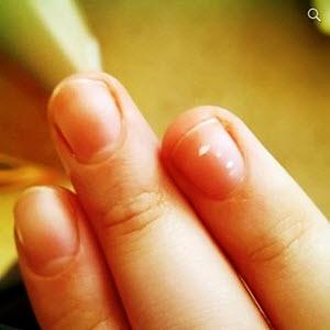 Причины появления белых пятен на ногтях рук