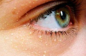 жировкик вокруг глаз и под ними
