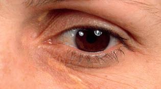 жировики под глазами и причины их появления