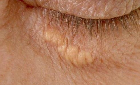 большой внутренний жировик под глазом