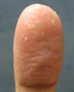 причины шелушения кожи на пальцах рук