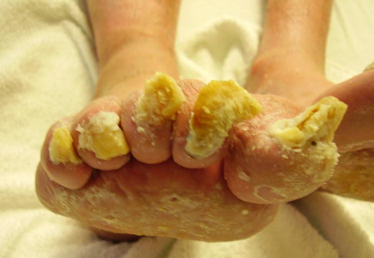 видео снятие грибка на ногах