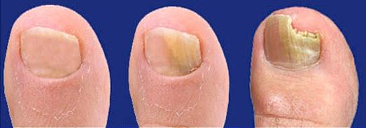 грибок ногтей на ногах фото