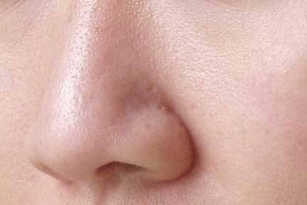 Крем убирающий следы от прыщей на лице