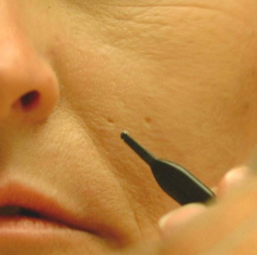 Как сделать кожу лица ровной без прыщей