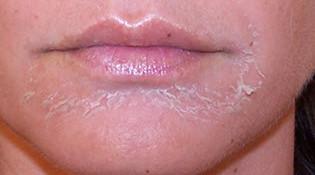почему шелушится кожа на лице