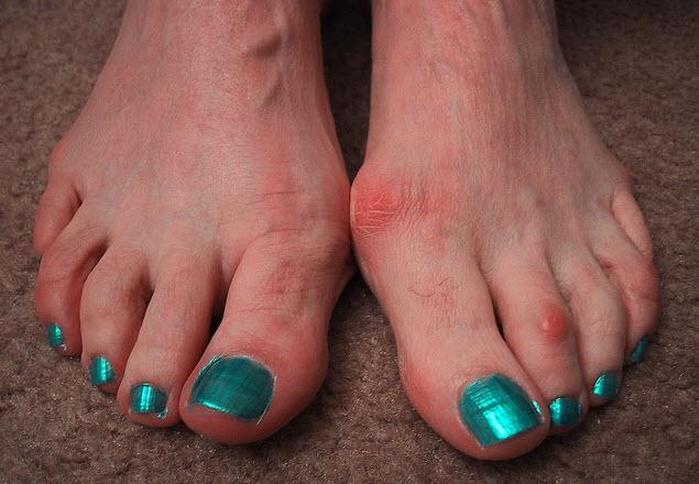 косточка на большом пальце ноги фото