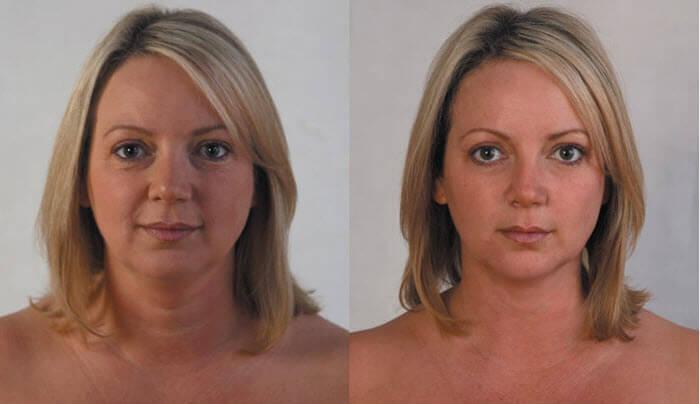 мезонити до и после фото