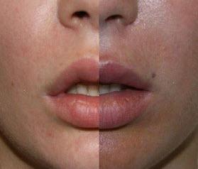 хейлопластика париж фото до и после