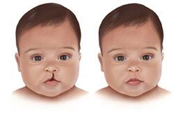 Хейлопластика при детских врожденных патологиях