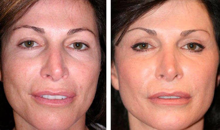 плазмолифтинг фото до и после