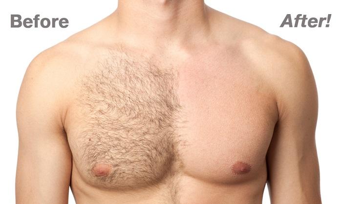 биоэпиляция мужской груди
