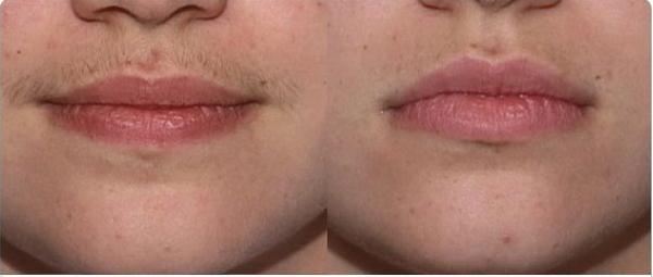 эпиляция воском над губой